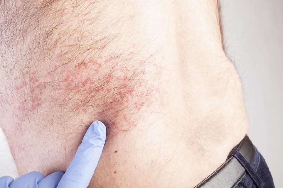 simptomi herpesa lecenje herpes